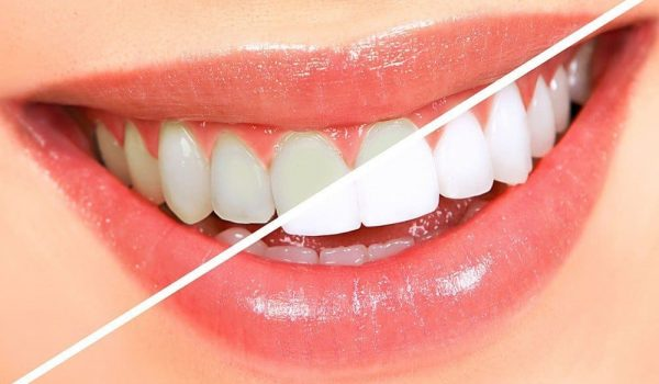 What Can I Eat After Teeth Whitening?
