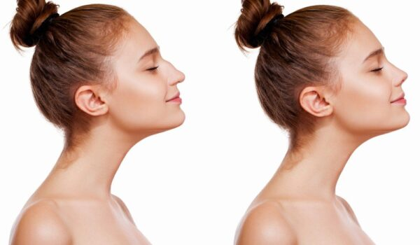 How Much Does The Average Rhinoplasty Cost?