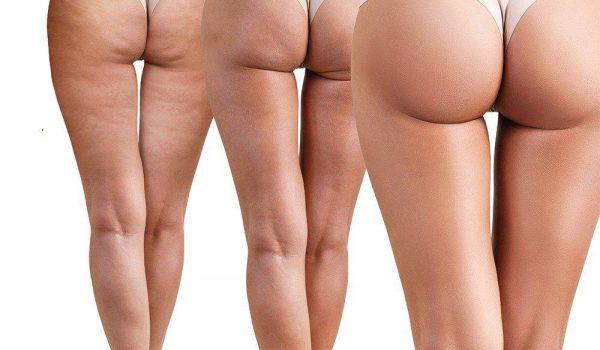 Affordable BBL (Brazilian Butt Lift) Surgery?
