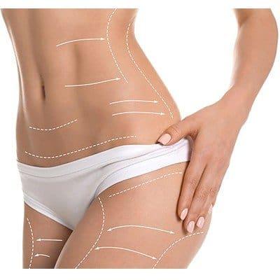 Liposuction Side Effects