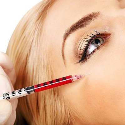 What Should You Expect During Platelet-Rich Plasma Injection Procedure?