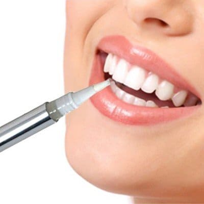 How long will teeth whitening stay?