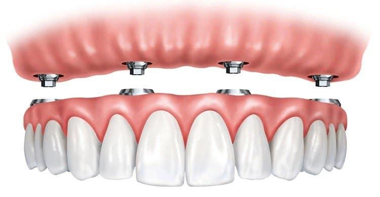 زراعة الأسنان بتقنية all on 4