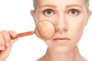 What Is Skin Pigmentation?