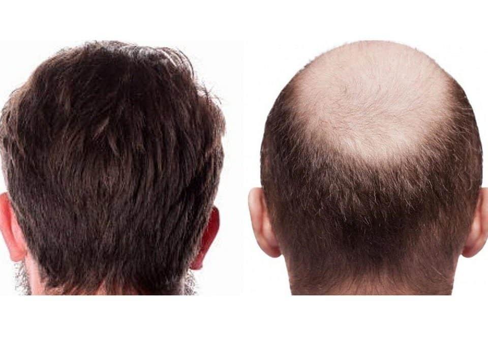 FUE Hair Transplant Growth