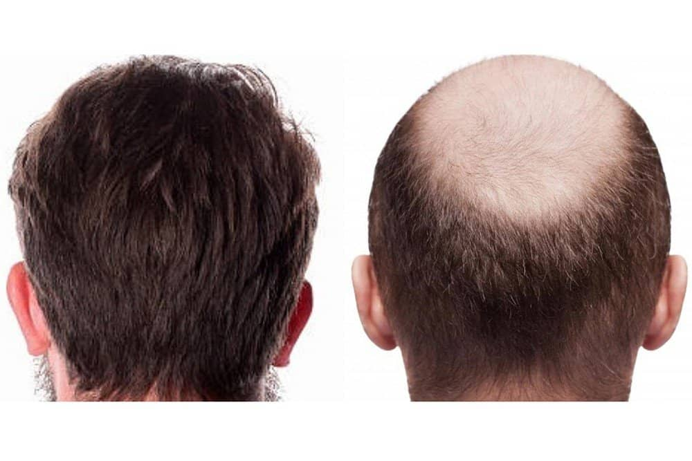FUE Hair Transplant Growth