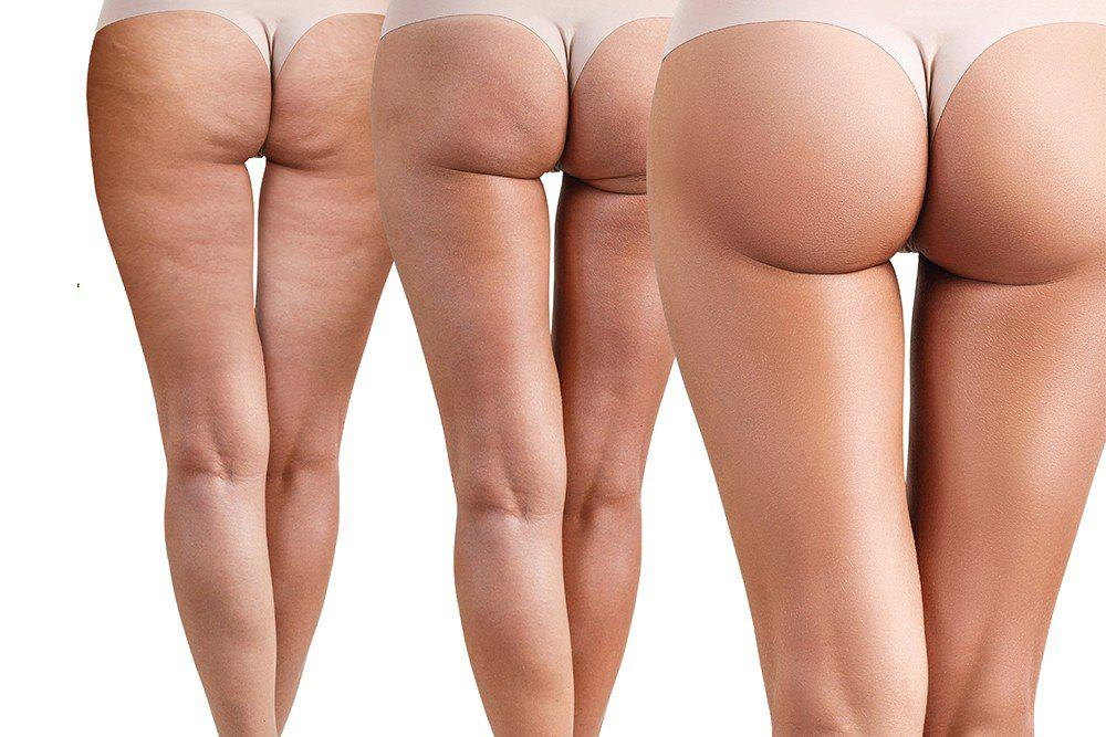Affordable BBL (Brazilian Butt Lift) Surgery?
