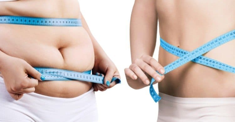 Gastric Balloon for Weight Loss