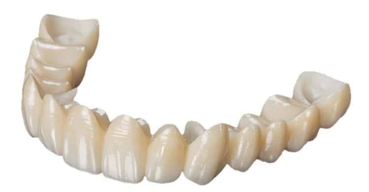 تلبيس الأسنان (زيركون الأسنان)