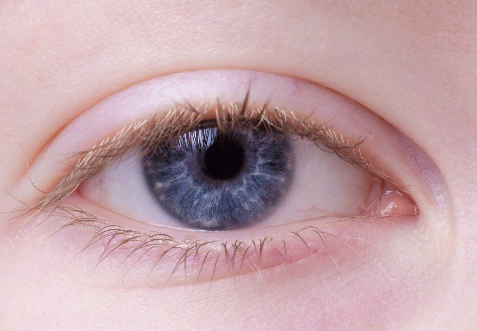 Eyelid Surgery: Two Weeks To A Younger-Looking You
