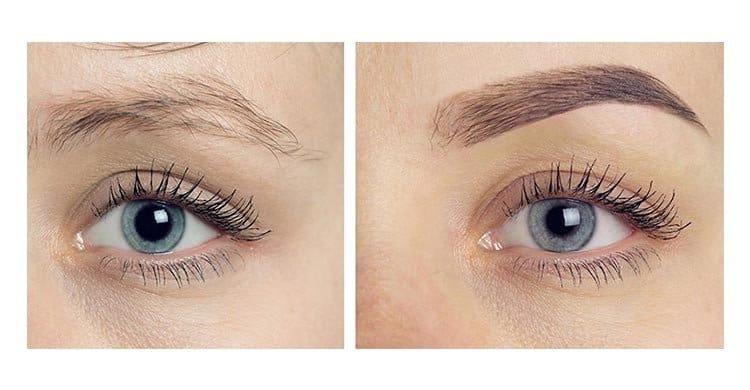 Eyebrow Transplant Surgery
